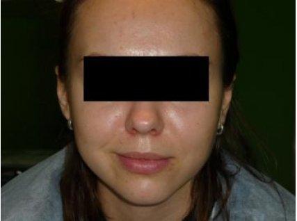 Ольга, 25 лет После