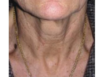 Анна, 58 лет До