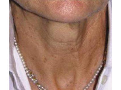 Анна, 58 лет После