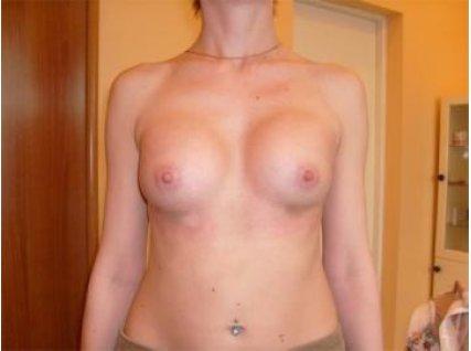 Анна, 21 год После